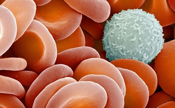 """Leucemia Mieloide Acuta: in un paziente su due scoperta """"sequenza aliena"""" di DNA alla base dell'alterazione genetica"""