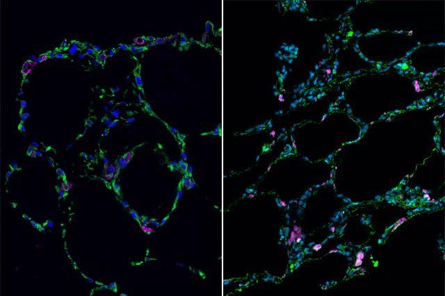 Polmoni coltivati in 3D con cellule staminali