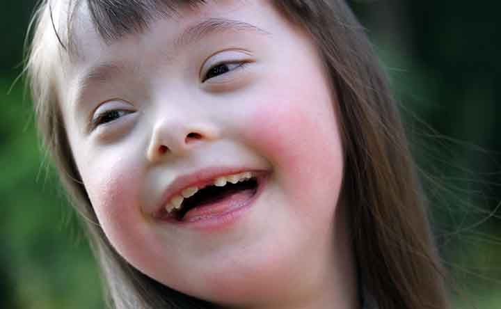 Sindrome di Down: un passo avanti grazie ad una nuova tecnica non invasiva
