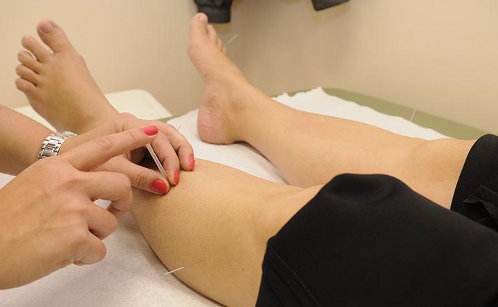 L'agopuntura non è una cura efficace per l'infertilità