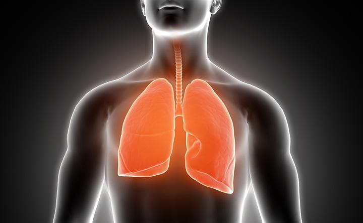 Bronchiectasia: novità dalla scienza per la cura di questa malattia dell'apparato respiratorio