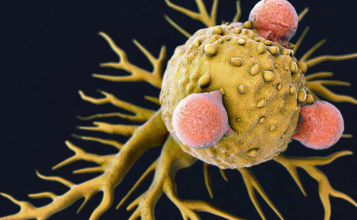 Un particolare virus è in grado di uccidere le cellule tumorali?