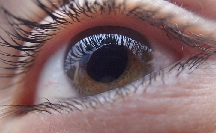 Nuove armi nella Terapia Medica del Glaucoma