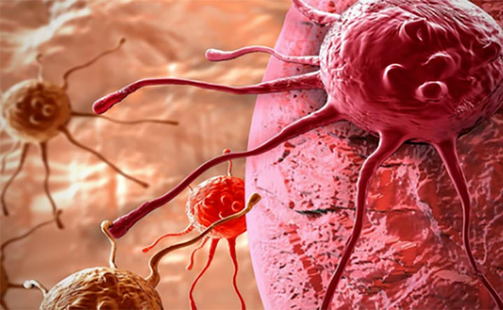 geni-oncolab-obesita