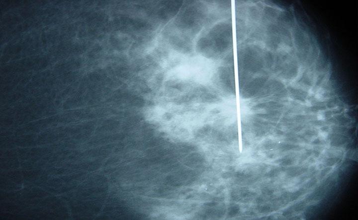 """Tumore al seno: scoperta la """"firma molecolare""""che predice il rischio di metastasi"""