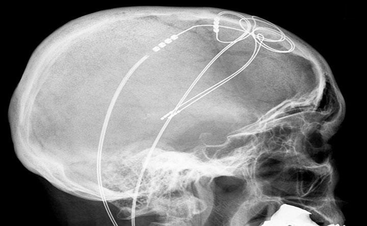 Meno complicanze per i pazienti di Parkinson grazie alla Stimolazione Cerebrale Profonda