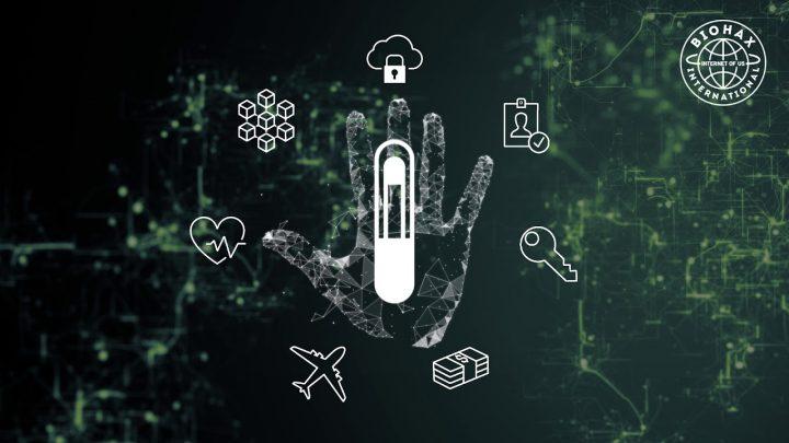 Cosa potrà fare il microchip sottocutaneo